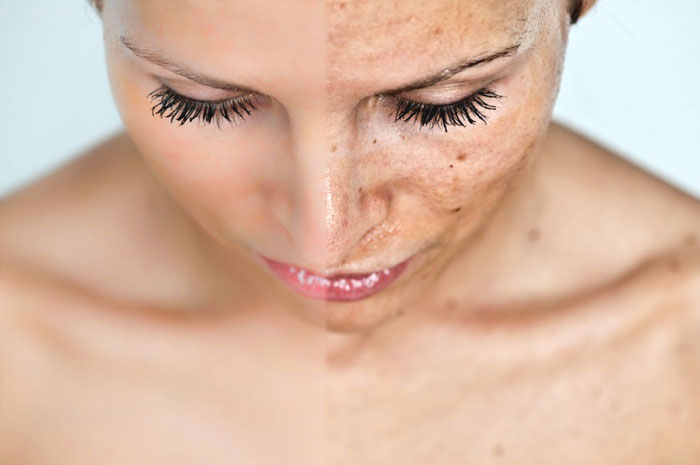 Treatment-For-Melasma